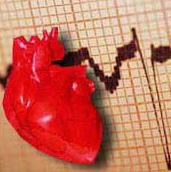 تنظيف عدم انتظام ضربات القلب
