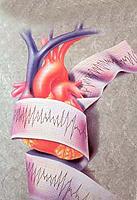 Wie lebt man nach einem Herzinfarkt?
