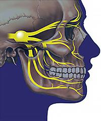 Превенција тригеминалне неуралгије