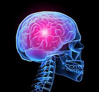 We recognize the symptoms of stroke disease