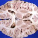 brain encephalopathy
