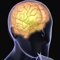 خلل الدماغ الفلين