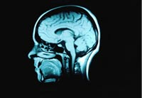 Symptoms and diagnosis of brain abnormalities