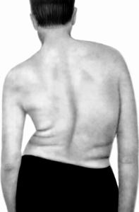 syringomyelia can be stopped