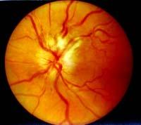 Неврит и зрение