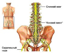 why sciatic nerve pain