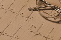 Защо инсултът е опасен и как да намалим риска от заболяването?