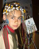 Wie wird Epilepsie diagnostiziert?