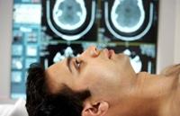 Лечение на епилепсия