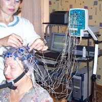 Epilepsie: Was müssen Sie über diese Krankheit wissen?