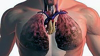 lung cancer stage of disease symptoms and diagnosis of lung