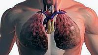 Какво е рак на белия дроб