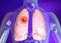 lung cancer types and symptoms