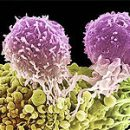 a new type of tumor marker in the diagnosis of ovarian cancer