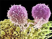 Ein neuer Typ von Tumormarkern in der Diagnose von Eierstockkrebs