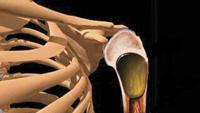 of bone cysts
