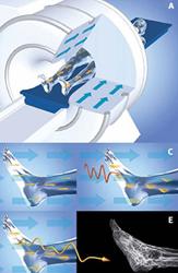 Mágneses rezonancia képalkotás