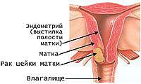 Gebärmutterhalskrebs