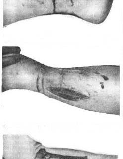 Treatment of Ewing's sarcoma