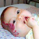 hemangiomas occurrence of hemangiomas