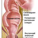 rectal cancer 2