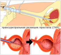 transurethral removal of the prostate area