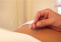 Основните разпоредби на рефлексотерапията