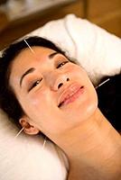 Akupunktúrás kezelés