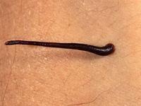 how to treat leeches