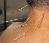 Akupunktur: die Geheimnisse der Tradition
