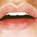 candidiasis of the oral mucosa
