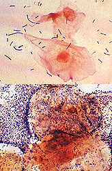 vaginal bacteria overgrowth
