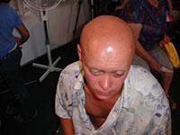 Radiation disease, syndromes