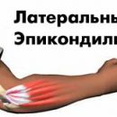causes of tennis elbow