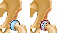 Diagnose und Behandlung von Arthrose des Hüftgelenks