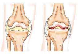 Артрит на коляното