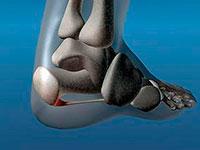 Лечение на шпора на петата от черна ряпа