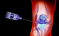 arthrosis treatment and self-medication errors