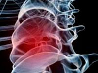 Упражняваща терапия при артроза на гръбначния стълб
