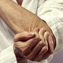 elbow joint arthrosis disease violin and tennis