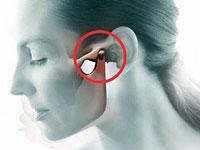 arthrosis of temporomandibular joint causes and manifestations