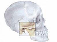 Признаци на артроза на темпоралната става и нейното лечение