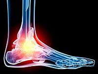 Mozgás a lábcsuklók arthrosis ellen