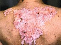 Idiopathische Dermatomyositis-Symptome