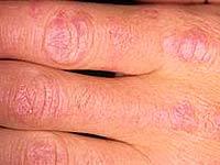 Die wichtigsten Anzeichen einer systemischen Dermatomyositis. Diagnose der Krankheit
