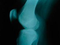 Röntgen-diagnosztika a térdcsukló arthrosis 2 fok