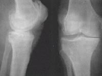 Röntgen képdiagnózis az osteoarthrosis