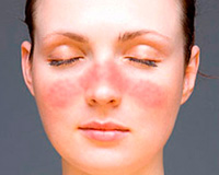 Systemic lupus erythematosus and pregnancy