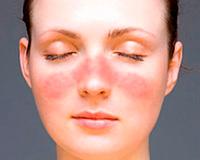 Schwangerschaft und systemischer Lupus erythematodes