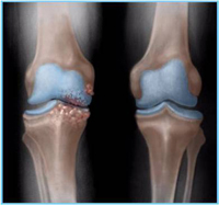 you need to know about arthritis